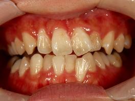 施術前後の比較ができるよう口腔内写真をお撮りします。