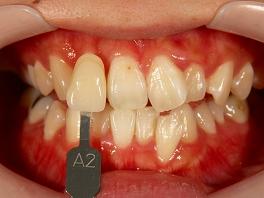 歯面清掃、口腔内写真の撮影を行います。