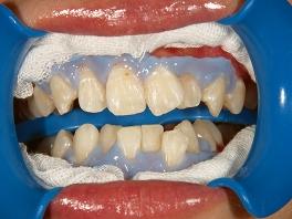 歯面の清掃、歯肉の保護を行い、ジャルを歯面にのせます。