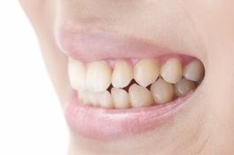 キレイな歯並びは、歯の健全な育成に役立ちます