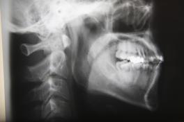 顎と歯のバランスを整えて、見た目も美しく正しい噛み合わせに